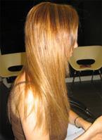 אחרי תוספת שיער