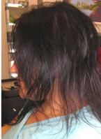 לפני מילוי שיער דליל