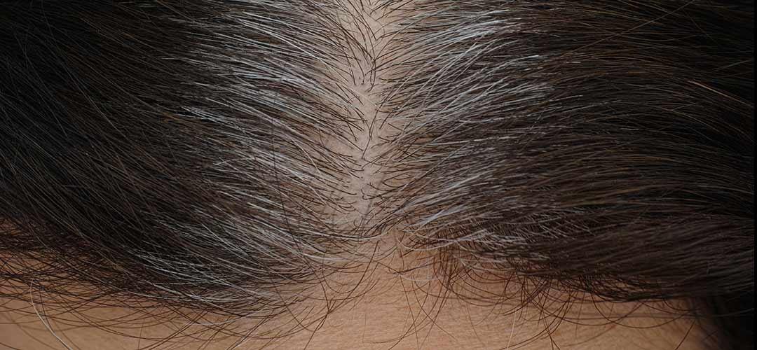 צביעת שיער לבן זכוכית, עקשן או עבה